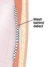 Cross section of abdominal wall showing mesh repair behind hernia defect.